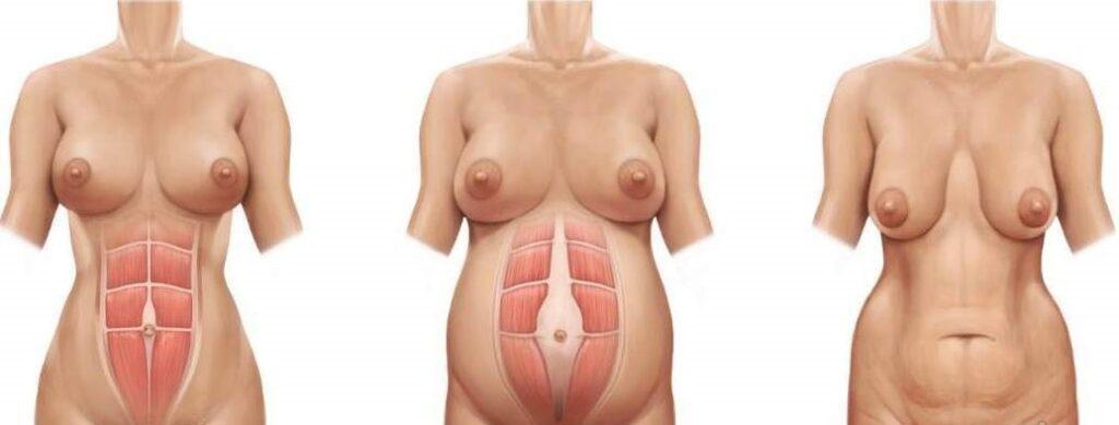 tratamentos estéticos pós parto